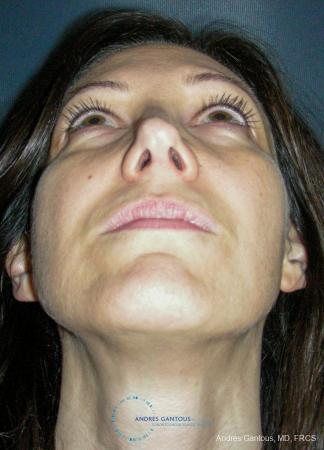 Revision Rhinoplasty: Patient 14 - After Image 2