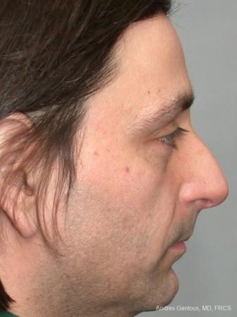 Rhinoplasty: Patient 18 - Before Image 2