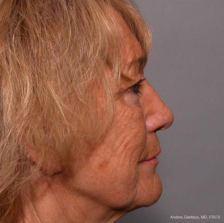 Facelift & Neck Lift: Patient 4 - Before and After Image 3