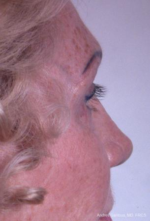 Eyelid Lift: Patient 8 - After Image 3