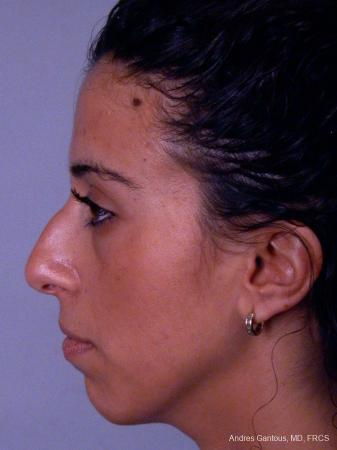 Rhinoplasty: Patient 15 - Before and After Image 3