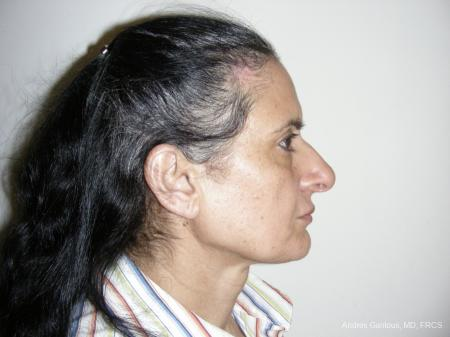 Eyelid Lift: Patient 1 - After Image 3