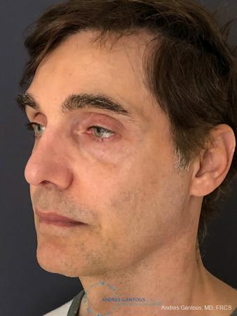 Rhinoplasty: Patient 81 - After Image 4