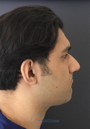 Rhinoplasty: Patient 64 - Before Image 5