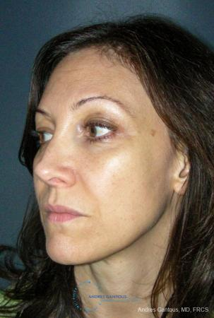 Revision Rhinoplasty: Patient 14 - After Image 4