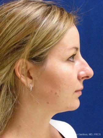 Rhinoplasty: Patient 28 - Before Image 4