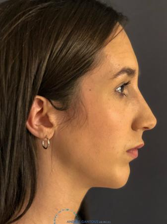 Rhinoplasty: Patient 8 - After Image 6