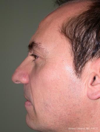 Rhinoplasty: Patient 11 - Before Image 2