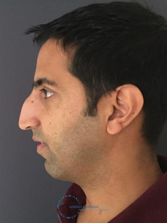 Rhinoplasty: Patient 78 - Before and After Image 6