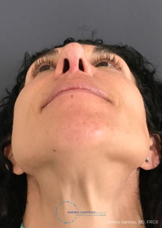 Revision Rhinoplasty: Patient 6 - After Image 2