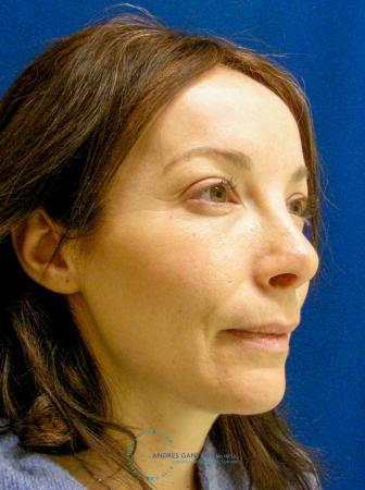 Revision Rhinoplasty: Patient 2 - After Image 2