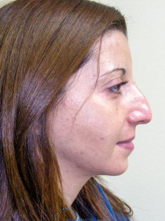 Rhinoplasty: Patient 64 - Before and After Image 6