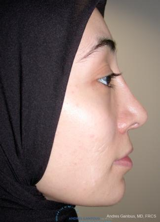 Revision Rhinoplasty: Patient 5 - Before Image 5