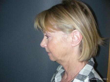 Facelift & Neck Lift: Patient 10 - Before Image 5