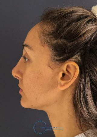 Rhinoplasty: Patient 62 - After Image 6