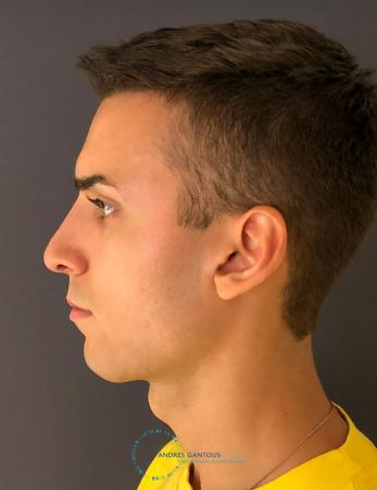 Rhinoplasty: Patient 67 - After Image 5