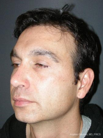 Rhinoplasty: Patient 45 - After Image 4