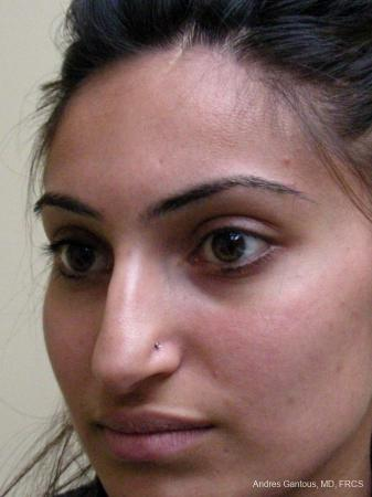 Rhinoplasty: Patient 29 - Before Image 3