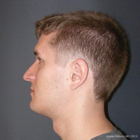 Rhinoplasty: Patient 50 - After Image 5