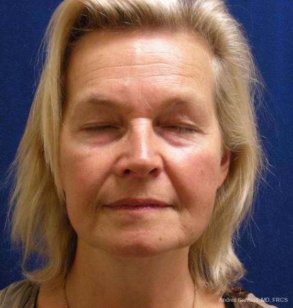 Facelift & Neck Lift: Patient 3 - After Image 1