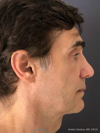 Rhinoplasty: Patient 81 - After Image 5
