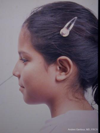 Otoplasty And Earlobe Repair: Patient 4 - After Image 3