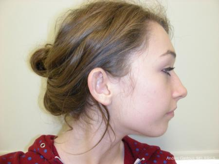 Otoplasty And Earlobe Repair: Patient 22 - Before Image 3