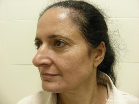 Eyelid Lift: Patient 1 - Before Image 4