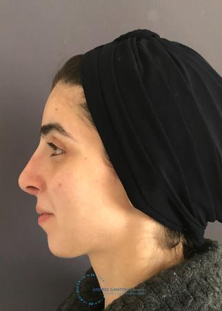 Rhinoplasty: Patient 60 - After Image 6