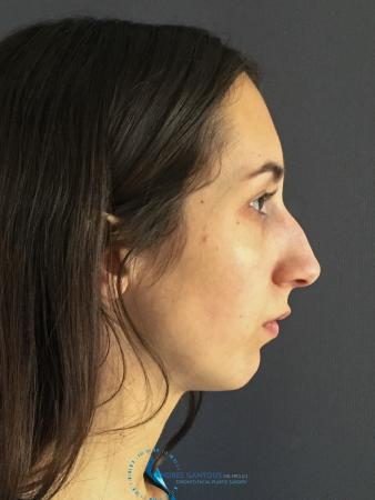 Rhinoplasty: Patient 8 - Before and After Image 6