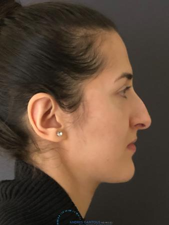Rhinoplasty: Patient 10 - Before and After Image 6