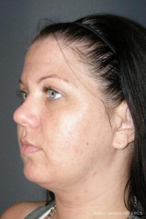 Facelift & Neck Lift: Patient 11 - After Image 4