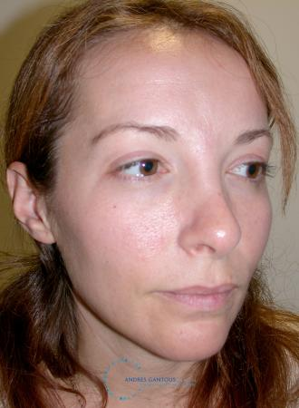 Revision Rhinoplasty: Patient 2 - Before Image 2
