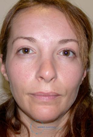 Revision Rhinoplasty: Patient 2 - Before Image