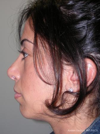Rhinoplasty: Patient 15 - After Image 3