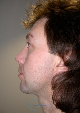 Revision Rhinoplasty: Patient 20 - After Image 4