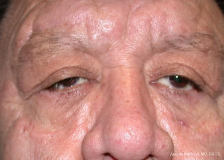 Eyelid Lift: Patient 3 - After Image 1