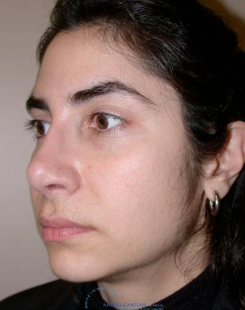 Revision Rhinoplasty: Patient 15 - After Image 3