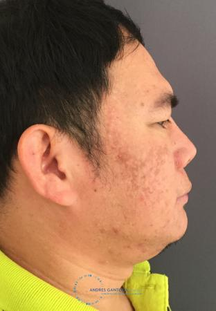 Rhinoplasty: Patient 65 - After Image 5