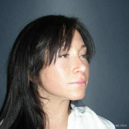 Rhinoplasty: Patient 47 - After Image 2