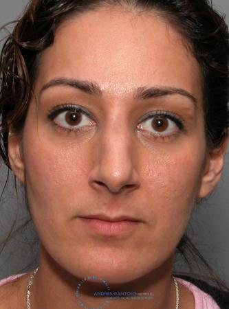 Revision Rhinoplasty: Patient 17 - Before 1