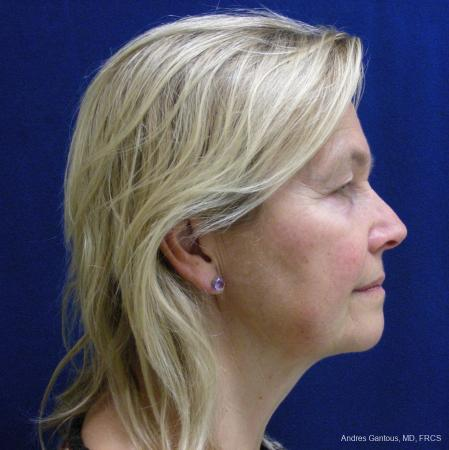 Facelift & Neck Lift: Patient 3 - Before and After Image 3