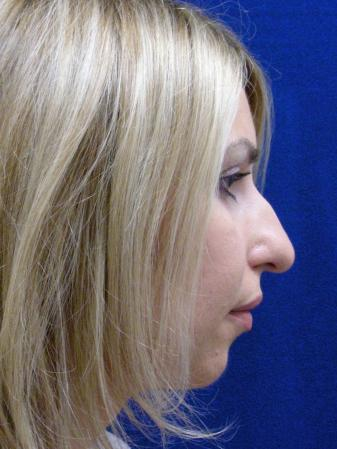 Rhinoplasty: Patient 76 - Before and After Image 5