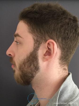 Rhinoplasty: Patient 100 - After Image 6