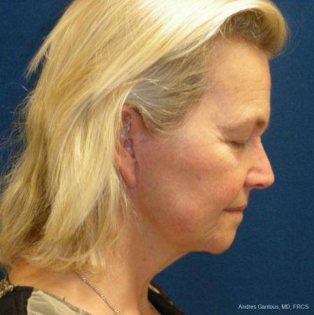 Facelift & Neck Lift: Patient 3 - After Image 2