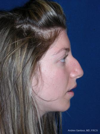 Rhinoplasty: Patient 52 - Before Image 5