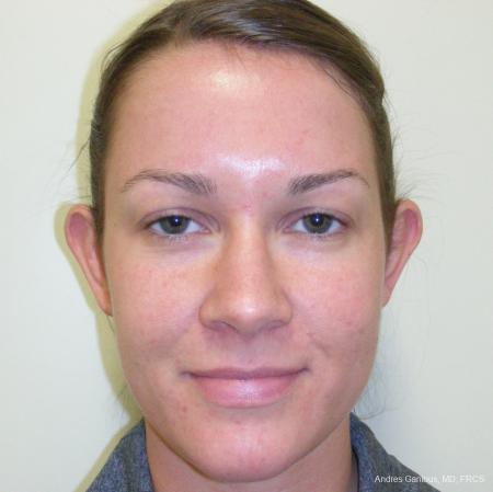 Otoplasty And Earlobe Repair: Patient 6 - Before Image 1
