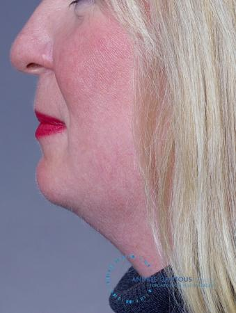 Chin Augmentation: Patient 9 - Before and After Image 3