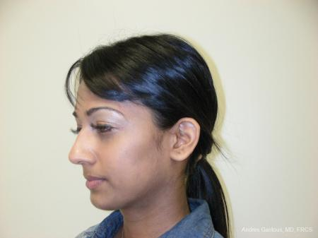 Otoplasty And Earlobe Repair: Patient 19 - Before Image 4