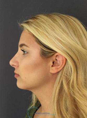 Rhinoplasty: Patient 72 - After Image 6